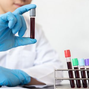 Blue gloved hand with a test tube full of blood in the foreground beside a tray of 4 blood-filled test tubes